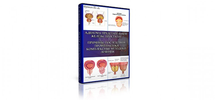 Мини инфопродукт №4 «Аденома предстательной железы. Простатит. Причины. Последствия. Профилактика. Комплексные методики лечения».