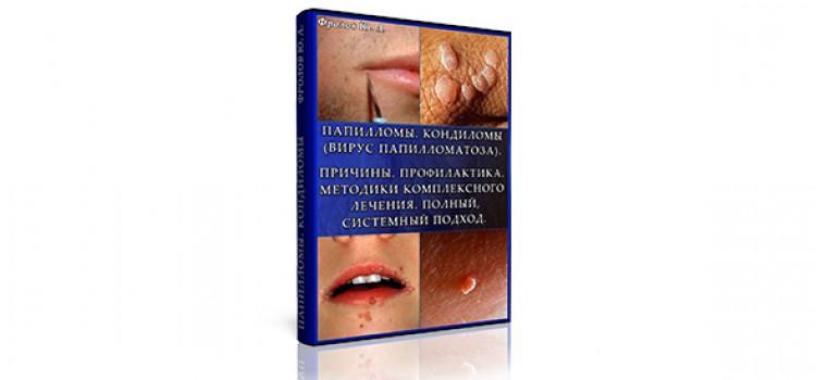 Мини инфопродукт №8 — Папилломы. Кондиломы (вирус папилломатоза). Причины. Профилактика. Методики комплексного лечения. Полный, системный подход.