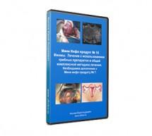Мини Инфо продукт № 16 Миомы.  Лечение с использованием грибных препаратов в общей комплексной методике лечения. Необходимое дополнение к Мини инфо продукту № 7.