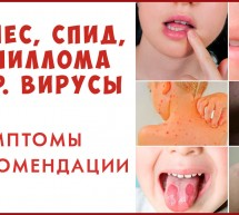 Вирусы и Иммунитет. Гепатит, папилломы, спид, герпес — общие рекомендации.