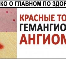 Красные точки на теле. Гемангиомы. Ангиомы. Что делать с красными точками на КОЖЕ?
