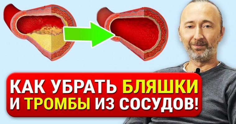 Как очистить сосуды от атеросклеротических бляшек, тромбов и снизить плохой холестерин.