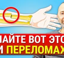 Как ускорить заживление костей после переломов? Что мешает срастанию костей? Питание и БИО добавки!