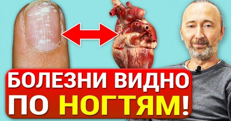 Как определить болезни по ногтям? 12 Знаков на ногтях, указывающих на проблемы со Здоровьем!